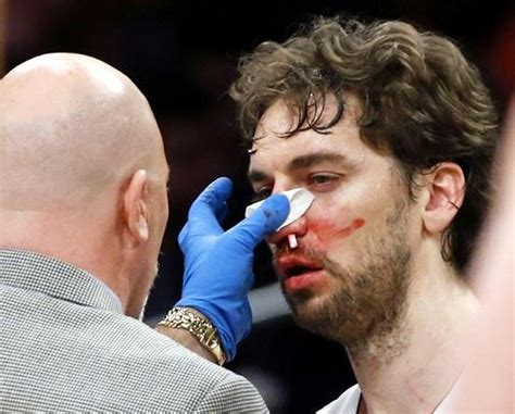 How Do Boxers Stop Nosebleeds?   Boxing Ready
