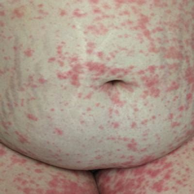 A Case of Pustular Psoriasis of Pregnancy With Positive