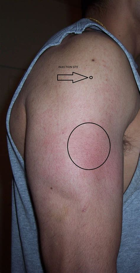 Injection Site Swelling, 2-3 inches below Shot