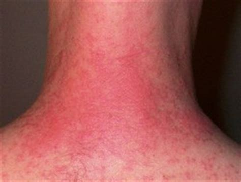 Itchy Rash on the Neck - Causes, Prevention and Treatment
