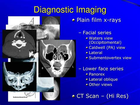 PPT - Maxillofacial Injuries in Sports and Exercise