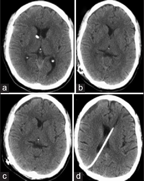 Co-presentation of a subdural empyema and an infected