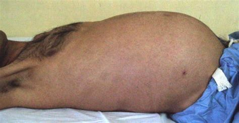 Would a Massive Intra-abdominal Malignant Peripheral Nerve