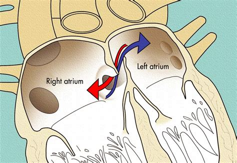 When to close a patent foramen ovale | Archives of Disease