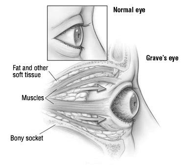 Graves' Eye Disease (Graves' Ophthalmopathy) Guide: Causes