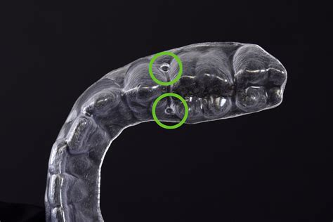 Auxiliaries and Clear Aligner treatment – ClearCorrect Support